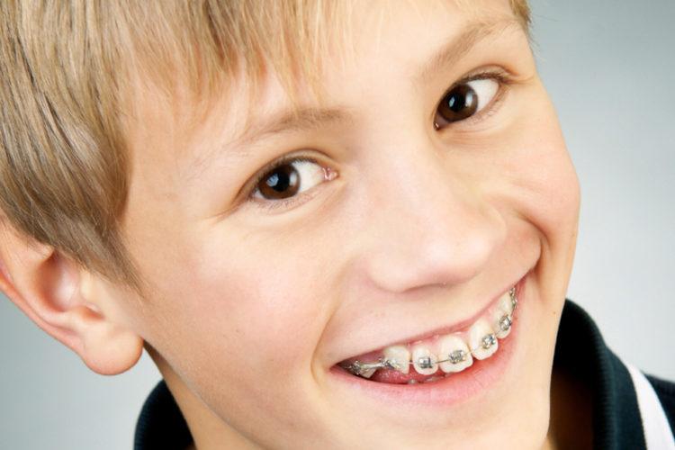 ortodonzia-bambini-verona-studio-dentistico-peretti-cavalleri